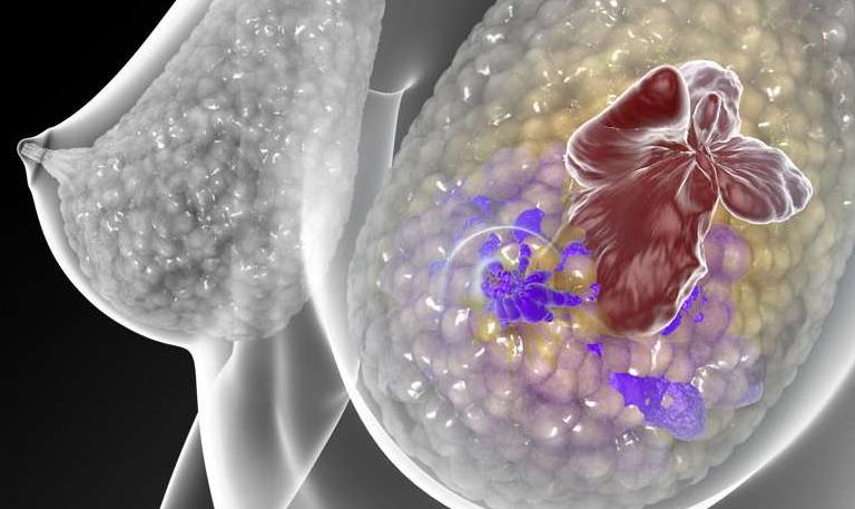 """预测乳腺癌复发的新型""""突变-追踪""""血液检查"""