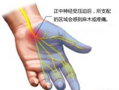 腕部的结构示意图,腕横韧带和正中神经