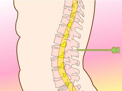 脊髓空洞分哪些类型