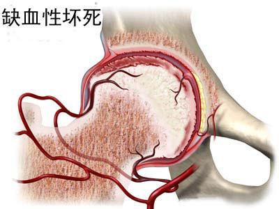 缺血性股骨头坏死什么情况下需要置换?