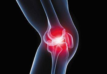 骨关节炎吃什么药最好?