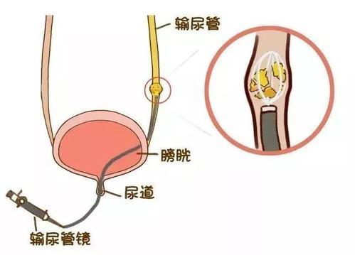 科普|肾结石微创手术过程