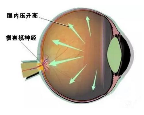 双眼黄斑病变怎么治疗